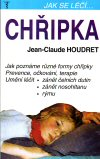 Jean-Claude Houdret: Chřipka
