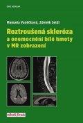 Manuela Vaněčková, Zdeněk Seidl: Roztroušená skleróza a onemocnění bílé hmoty v MR zobrazení