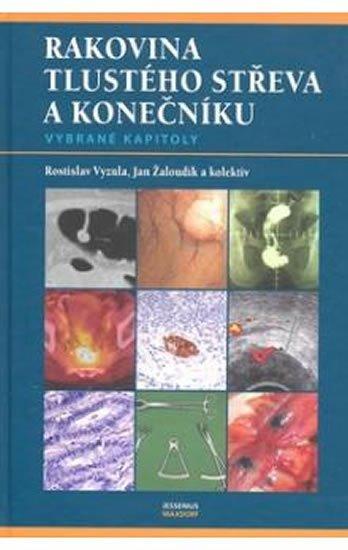 Vyzula Rostislav, Žaloudík Jan a kolektiv: Rakovina tlustého střeva a konečníku - vybrané kapitoly