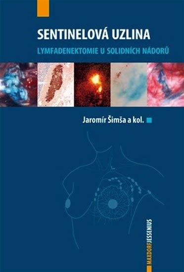 Šimša Jaromír a kolektiv: Sentinelová uzlina
