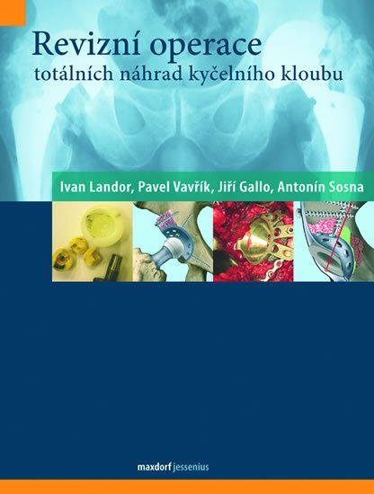 kolektiv autorů: Revizní operace totálních náhrad kyčelního kloubu