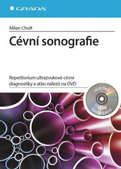 Cholt Milan: Cévní sonografie - repetitorium ultrazvukové cévní diagnostiky a atlas nále