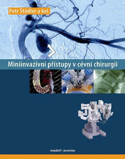 Štádler a kolektiv Petr: Miniinvazivní přístupy v cévní chirurgii