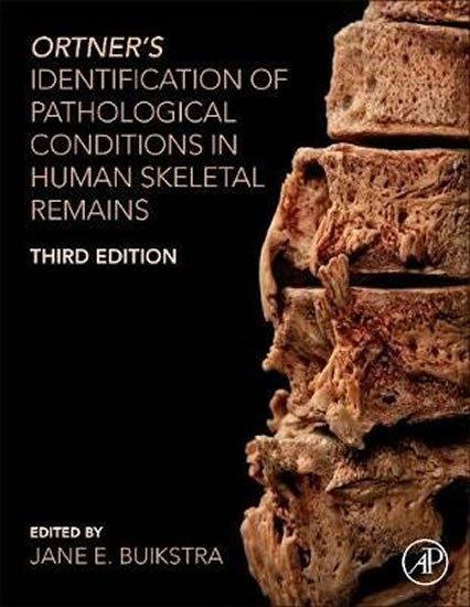 Buikstr Jane E.: Ortner's Identification of Pathological Conditions in Human Skeletal Re