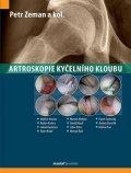 Zeman Petr: Artroskopie kyčelního kloubu