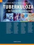 Solovič Ivan, Vašáková Martina,: Tuberkulóza ve faktech i obrazech