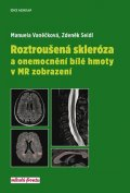 Vaněčková Manuela, Seidl Zdeněk,: Roztroušená skleróza a onemocnění bílé hmoty v MR zobrazení