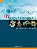 Kovalová Sylva, Nečas Josef,: 3D Echokardiografie