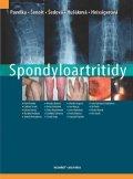 Pavelka Karel a kolektiv: Spondyloartritidy